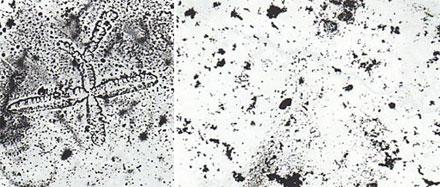 Как выглядит слюна беременной под микроскопом 50